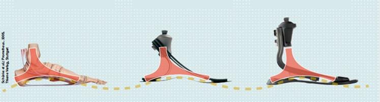 1C30轻型碳纤仿生脚