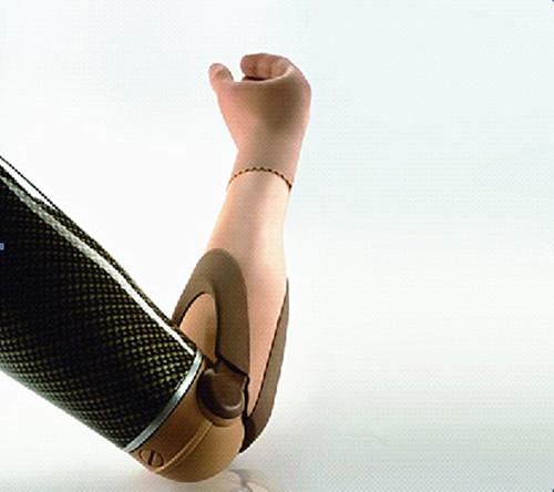 上臂肌电假肢